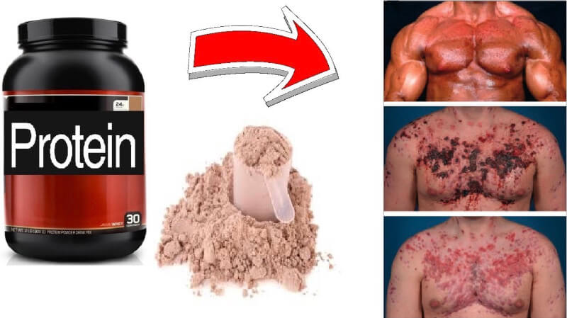 What Are The Dangers Of Whey Protein